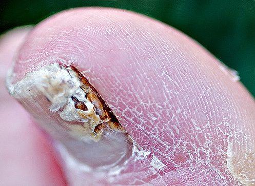 grzybica paznokcia - duży palec