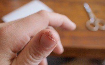 Najczęstsze problemy z paznokciami