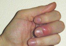 czynniki zachorowania na grzybicę