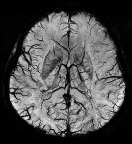 rezonans ukladu krwionosnego w mozgu