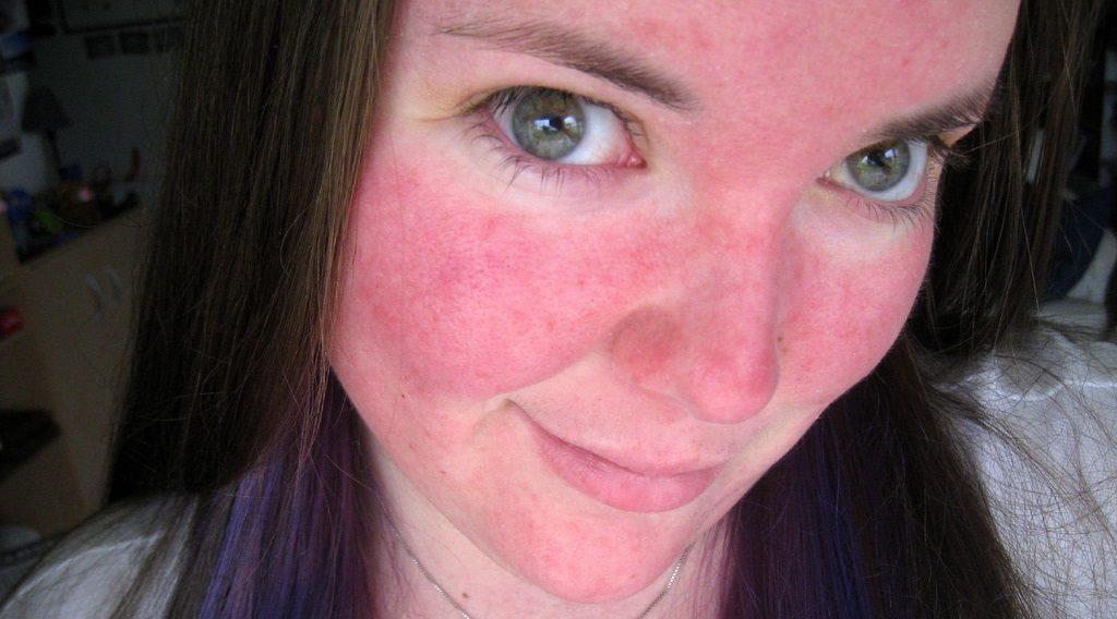 trądzik różowaty na twarzy zdjęcia